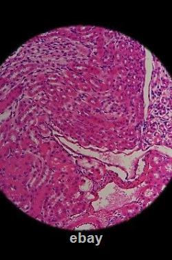 Olympus Lwd Cdplan 20x 0.40 160/0-2 Microscope Objectif Plan D'objectifs Rms